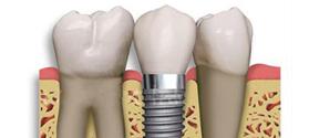 Implantes y Periodoncia